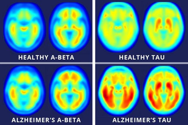 미국 워싱턴대 연구팀이 치매에 걸린 사람의 뇌(아래)와 걸리지 않은 사람의 뇌를 양전자방출단층촬영(PET)으로 촬영한 영상을 공개했다. 왼쪽은 아밀로이드 베타 단백질, 오른쪽은 신경세포 안의 타우 단백질을 측정한 영상이며 붉은색일수록 양이 많은 것이다. 양쪽 모두 치매 환자에게서 많이 발견된다. - 워싱턴대 의대 제공